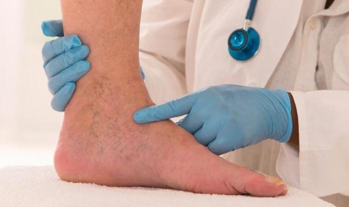 a láb rosszindulatú daganata