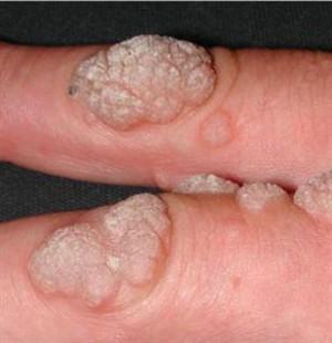 Bőr papillomatosis szövettana,