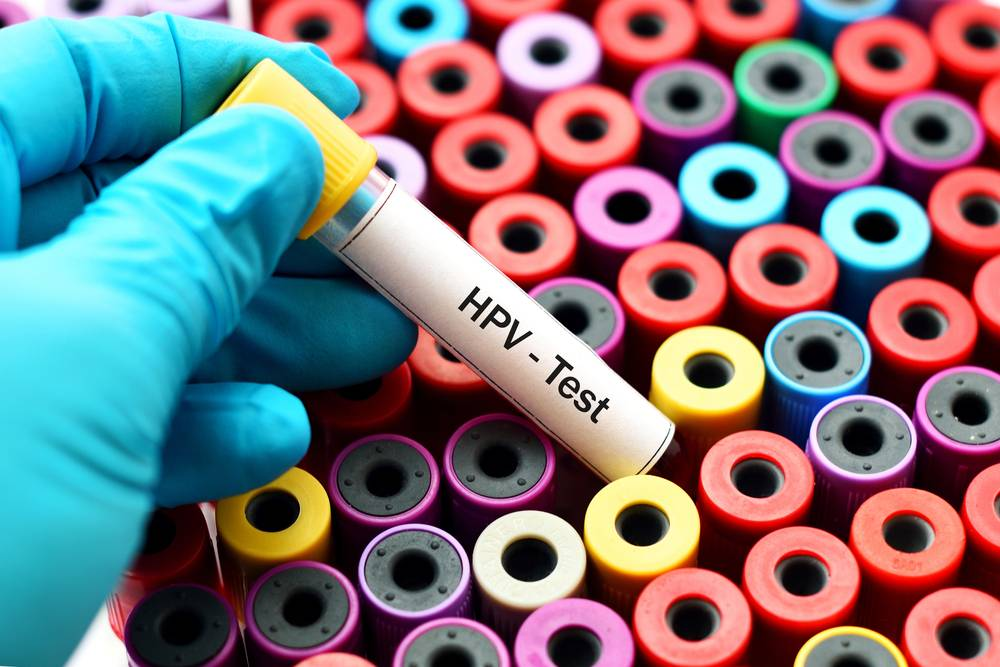 hpv szemölcs törzsek jóindulatú daganatokat okozhat-e a hpv