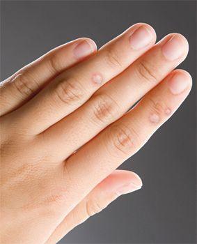 a kezeken lévő szemölcsök genetikai hpv vírus posledice