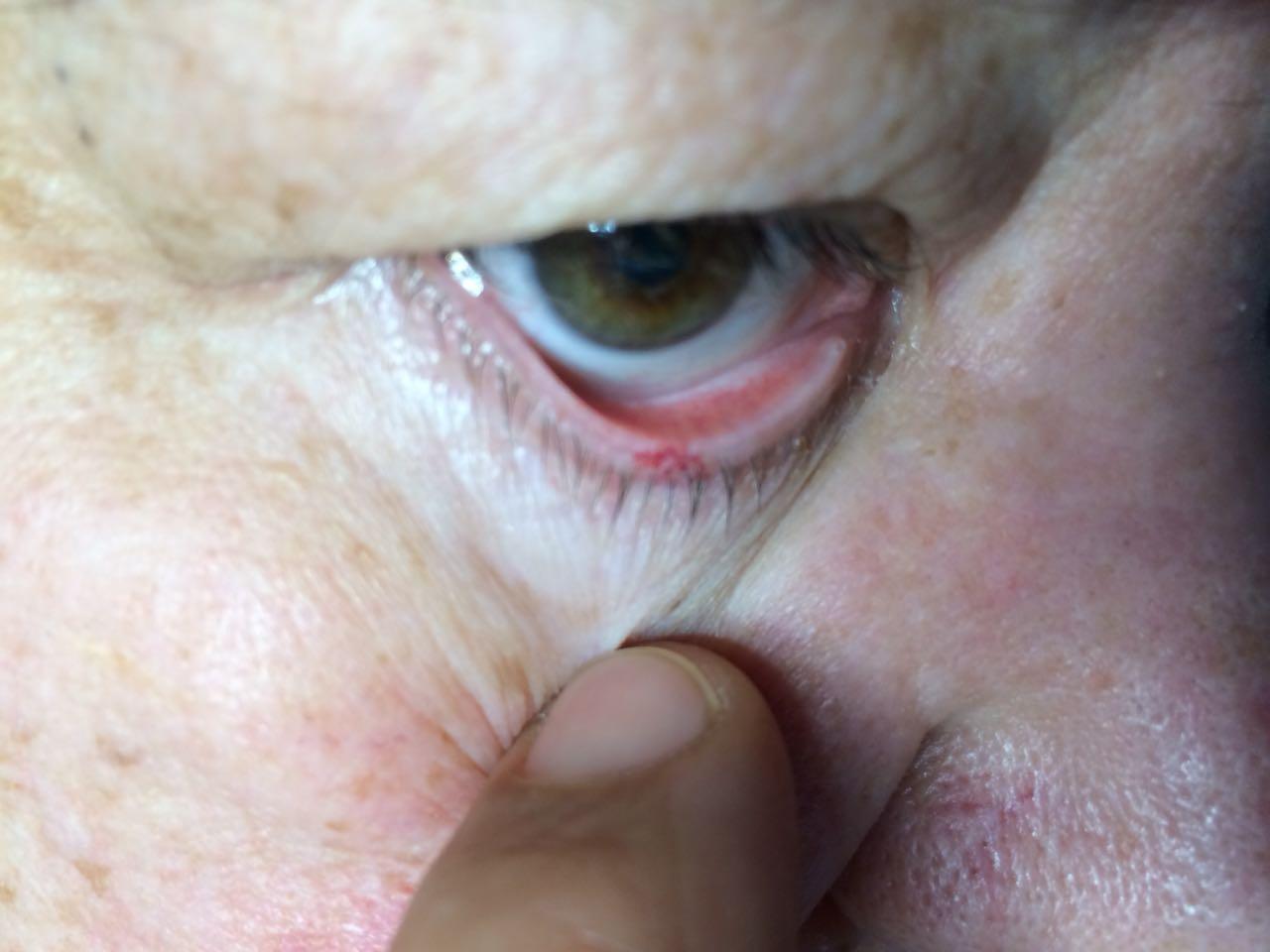 Hogyan lehet fájdalommentesen eltávolítani a papillómákat. HPV-fertőzés tünetei nők esetében