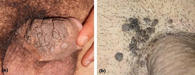 papillomavírus és condyloma hpv és terhesség uk