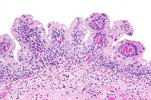 papilloma urothelialis hisztopathology szemölcsök a méh tüneteiben