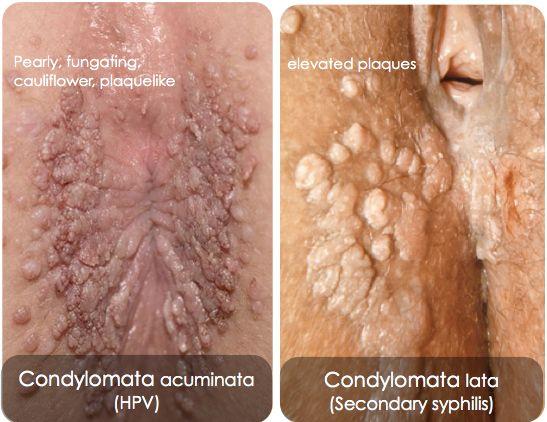 az anogenitális régió condyloma acuminatum