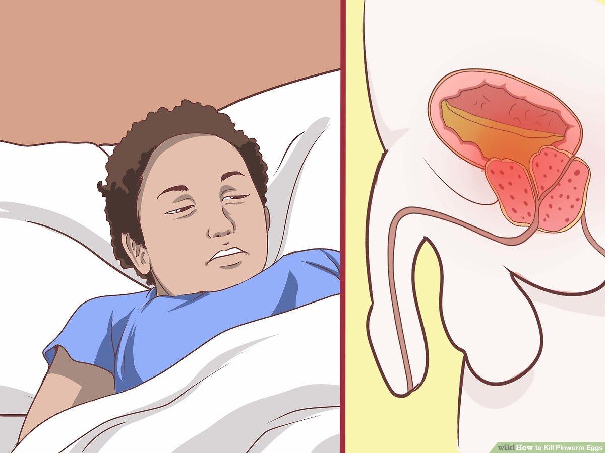 enterobiasis nhs férgek kezelése terhesség előtt