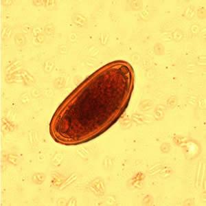 enterobius vermicularis graham technika