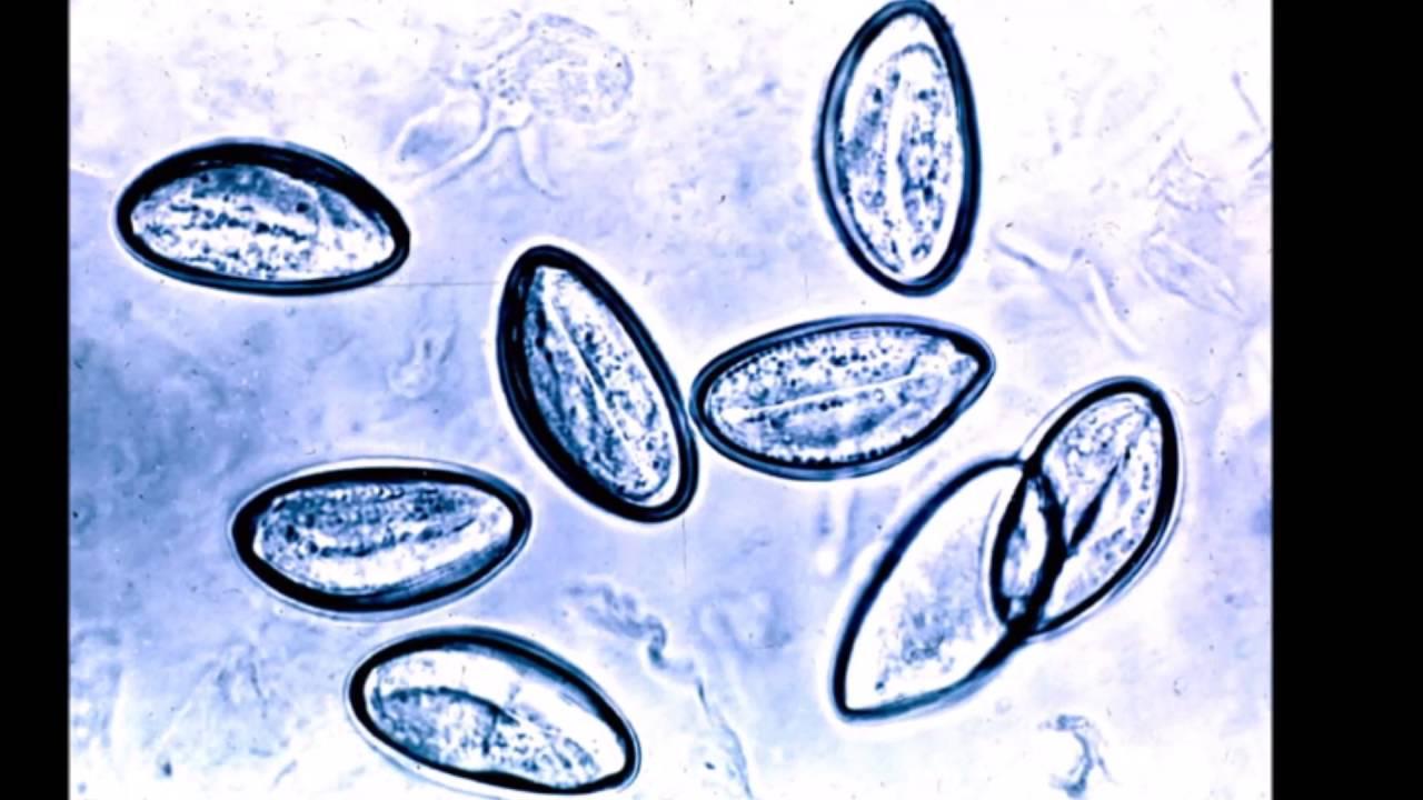 hpv férfi urológus a paraziták testének tisztítása gyógyszerekkel