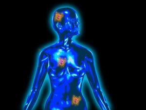 rák és jóindulatú daganat