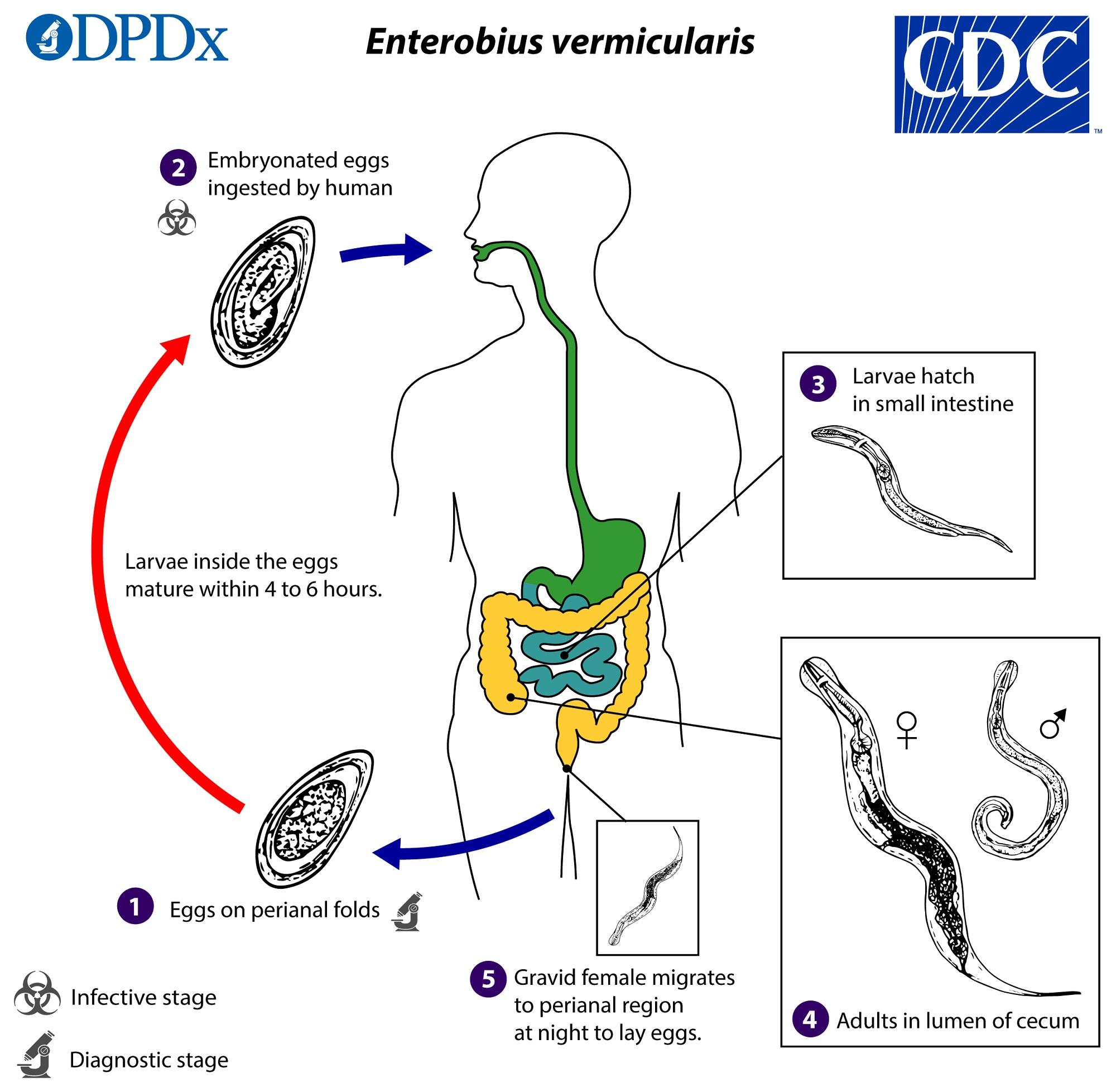 enterobius vermicularis pinwormjai enterobiasis természetes kezelés