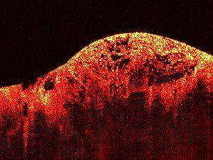 fibromyxoid szarkóma rák