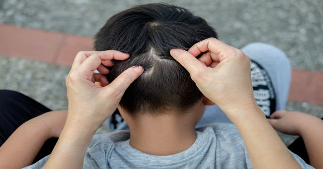 férgek 2 éves gyermekek tünetei