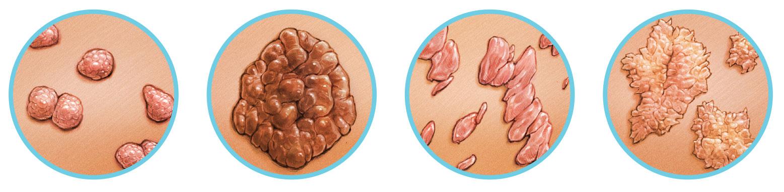 a papilloma gyulladt kezelése a máj és a vesék méregtelenítése
