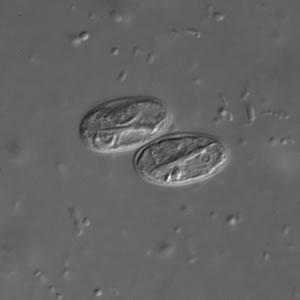 giardia immunválasza szemhéj papilloma eltávolítás vélemények