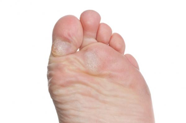 Atlétaláb, lábgomba, körömgomba, tyúkszem - Bőrbetegségek a lábon