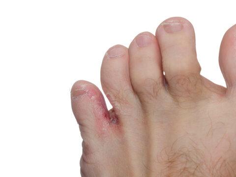 hólyagok a lábujjak között pátosz férgek ellen