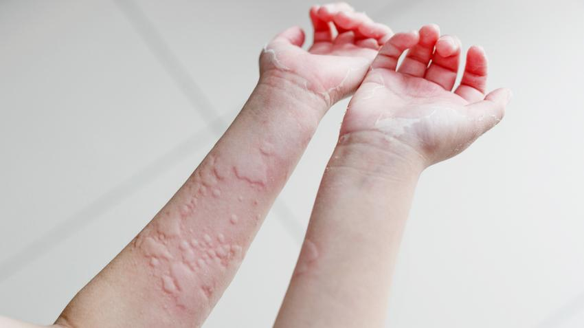 helmintikus betegség