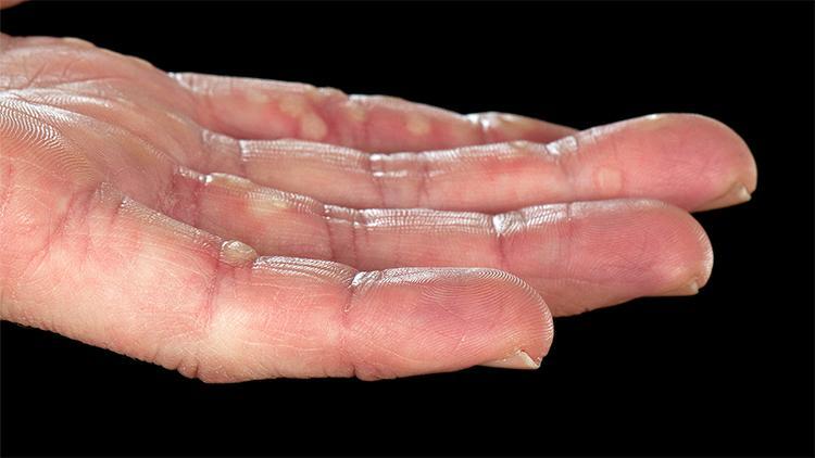 hpv warzen erkennen pinworms gyermekek kezelése