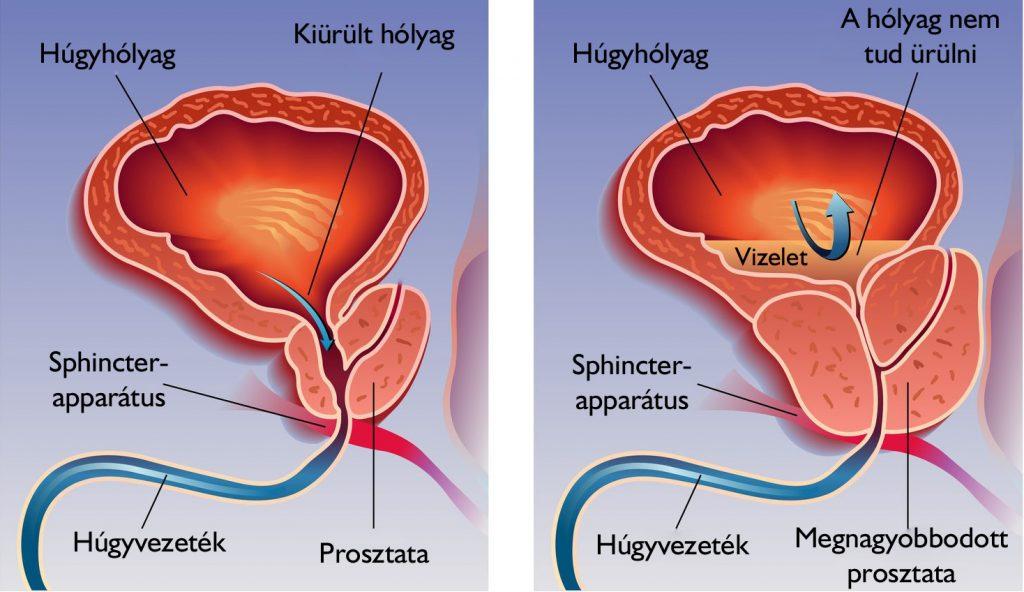 emberi tüdőférgek kezelése