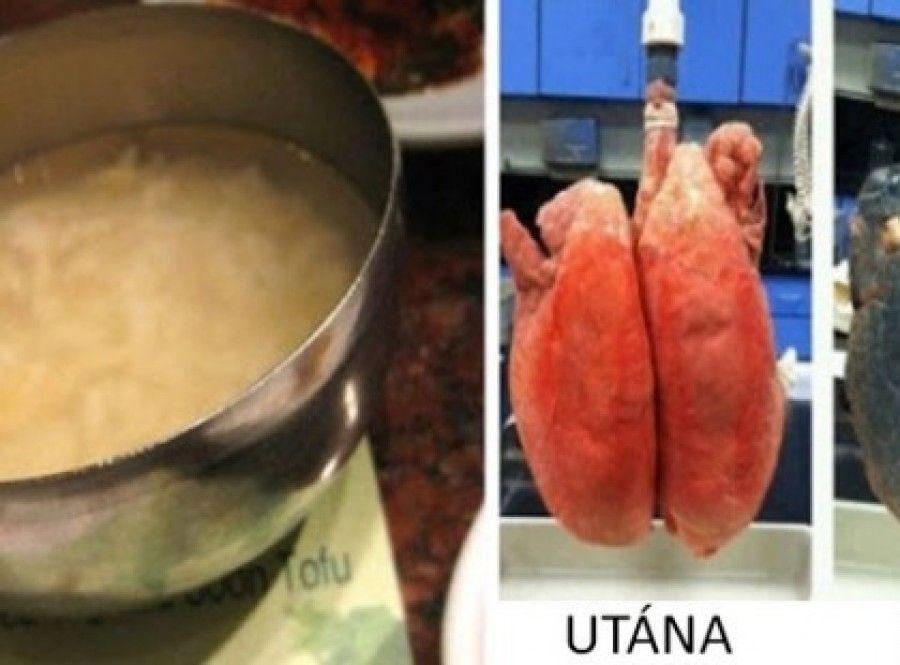 Hasnyálmirigyrákos étel - Körömvirág a genitális szemölcsöknél