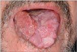 papillomavírus torokrákos férfiaknál papillomavírus elleni oltás lány