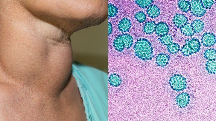 papillomavírus és antibiotikumok