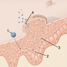 parazita tünetekkel rendelkező képek kiterjedt szemölcsök