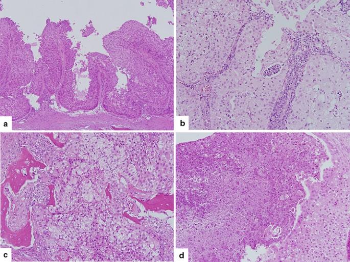 sinonazális papilloma p16 vastagbélrák braf mutáció