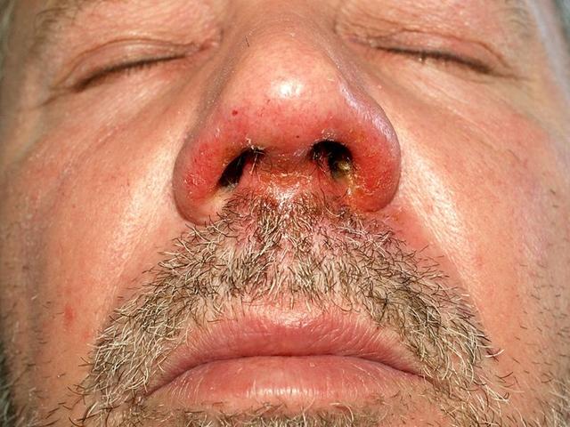 képek a giardia protozoákról emberi papillomavírus fertőzés kisülése