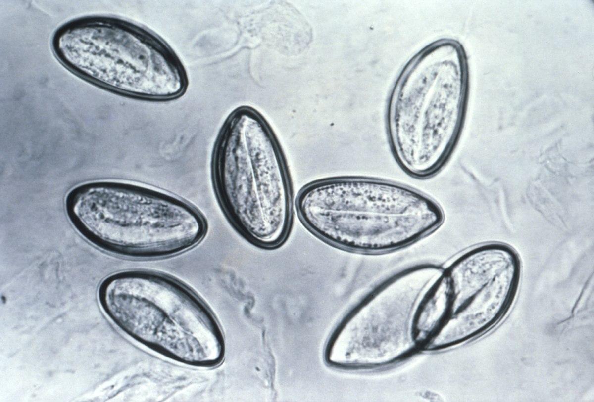 a pinworms parazitizálnak)