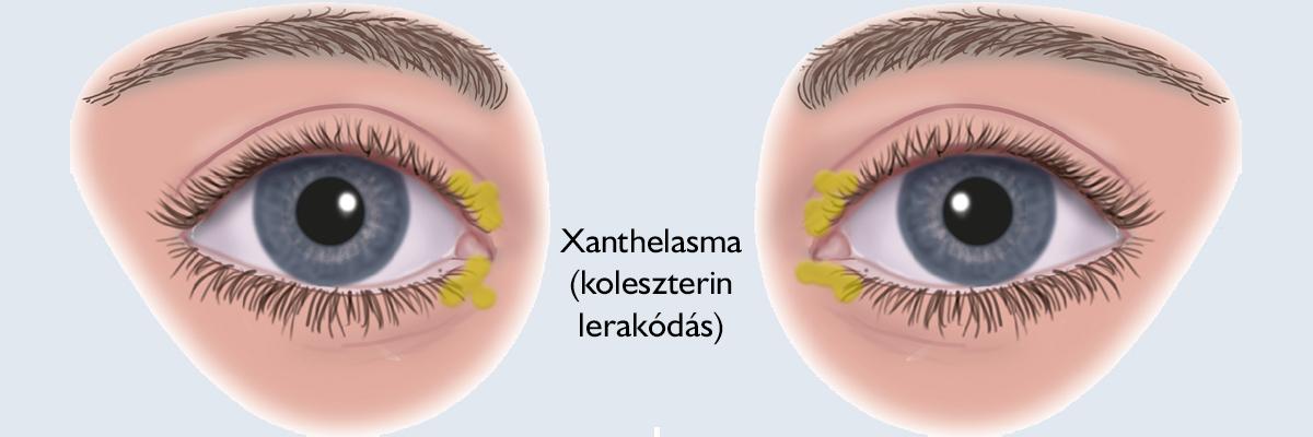 Nem érdemes várni a szemölcs eltávolításával - Dermatica