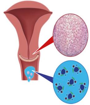 hpv vírus rakovina humán papillomavírus vakcina kezelés