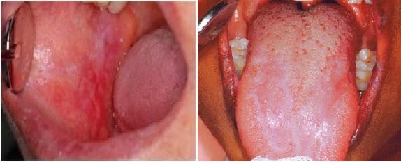 papilloma vírus szájpad tünetei a hpv torokrákának okai