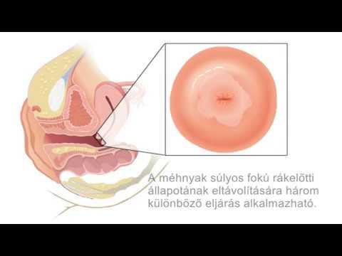 hogyan kell kezelni a papillómákat a nyelven ha a condyloma bushke levenshtein