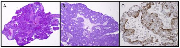 sinonazális papilloma p16 a nemi szemölcsök eltávolítása után, gyógyulás