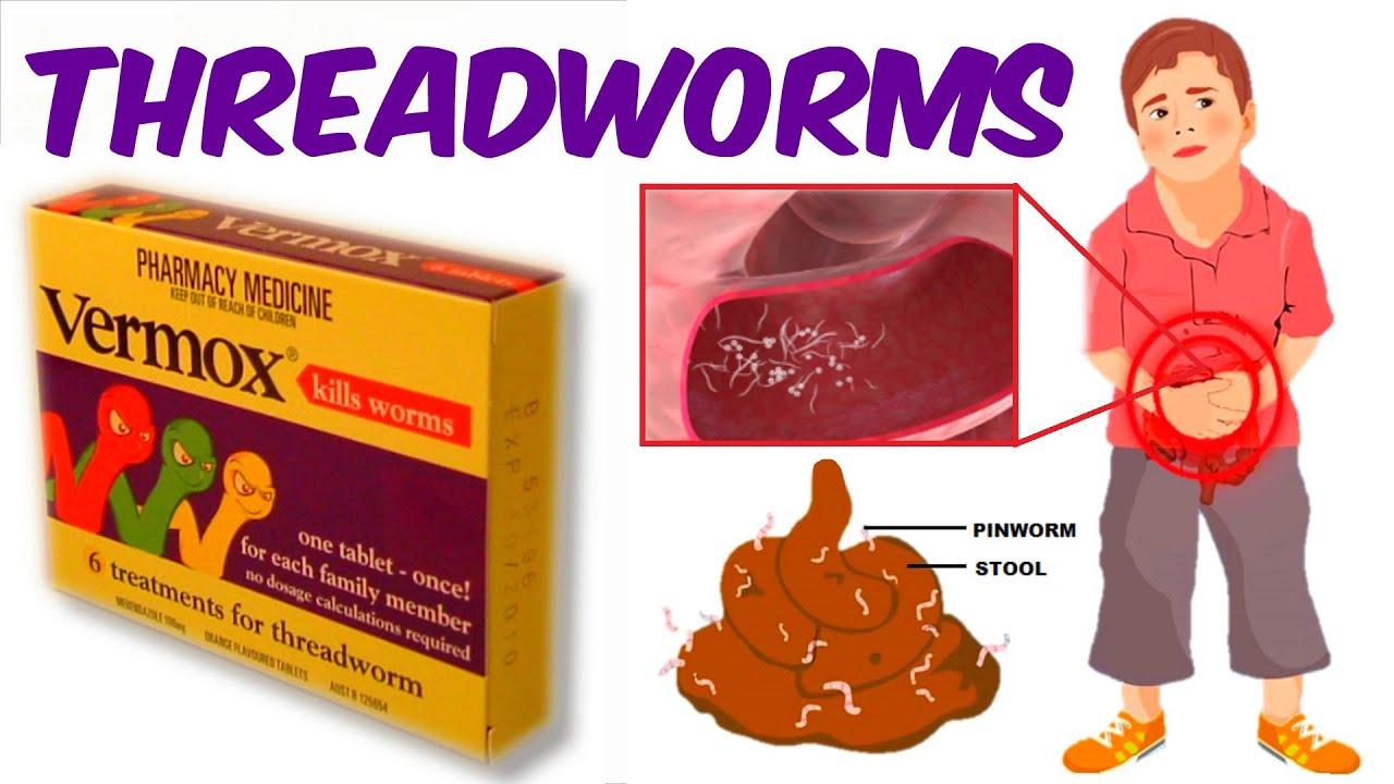 Pinworm fenék viszketés, Pinworms viszket
