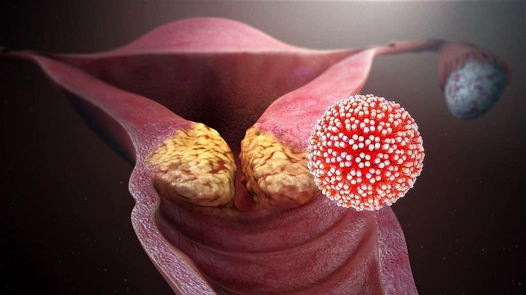 a papilloma vírus átterjed a magzatra hogyan lehet eltávolítani a papillómákat a szemhéjakról