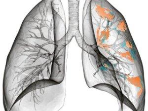 a tüdőrák kezelhető