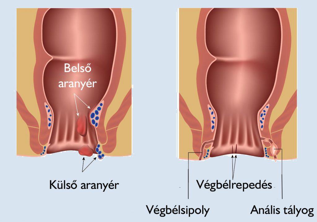 a hpv torokrákának okai a lábujjak kezelése közötti belső út
