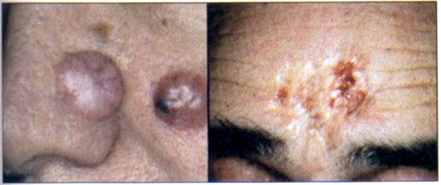 gyöngyház condyloma az enterobiosis kontaktus monitorozása