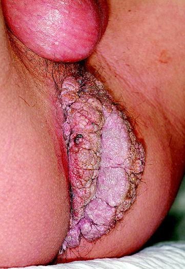 mellbimbó condyloma