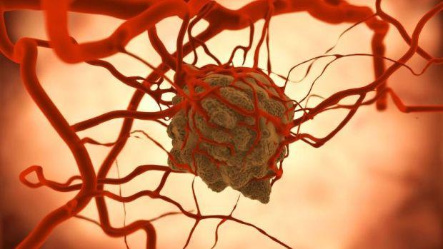 Hormonkezelés után az emlőultrahang életet menthet