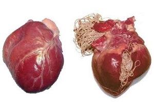 szívférgesség tünetei emberekben papillómák egy tinédzserben